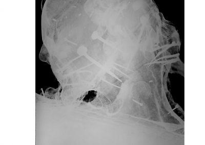 Radiografia-testa-1a